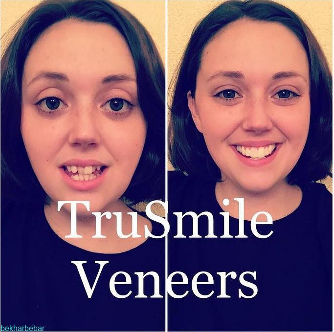 استفاده از لمینت متحرک دندان ترو اسمایل