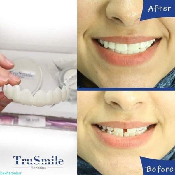 استفاده از لمینت متحرک دندان