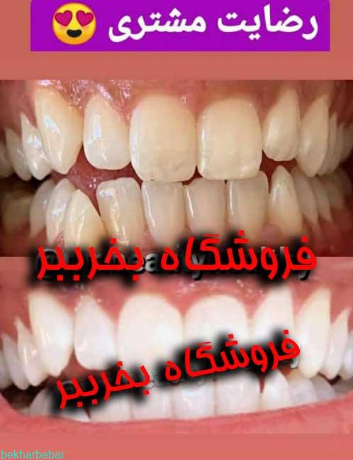 بلیچینگ خانگی دندان هنگام استفاده