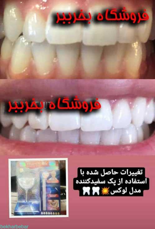 بلیچینگ خانگی دندان لوکس