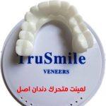فروش عمده لمینت متحرک دندان